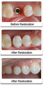 Before and After Implant Restoration