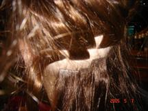 Extensions for partial hair loss
