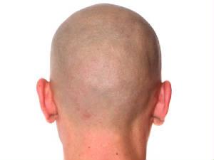 Hair loss in men, by Rodolfo Valentin