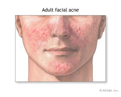 How To Cure Acne Naturally Fast
