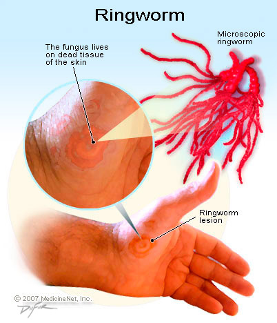 How To Get Rid Of Ringworm Naturally