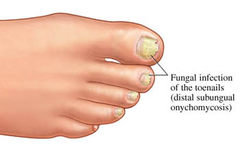 How to Cure Nail Fungus at Home Naturally