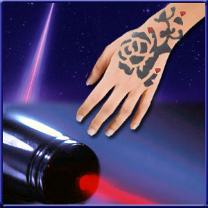 laser-tatoo-removal