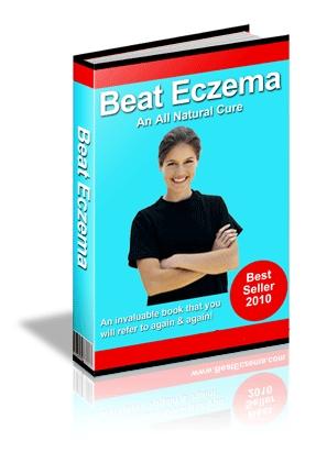 Beat Eczema Now - Beat Eczema Guide