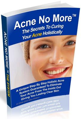 Where to Buy Acne No More