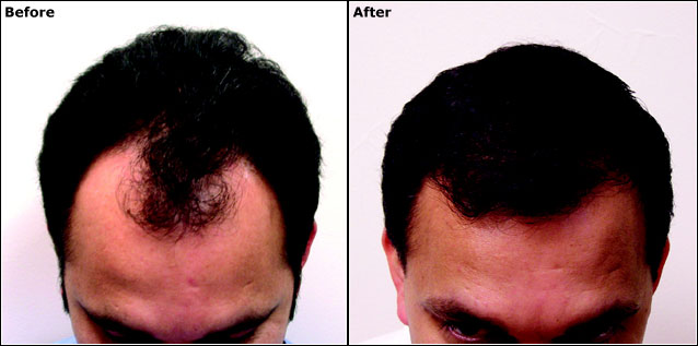 NeoGraft before-after1