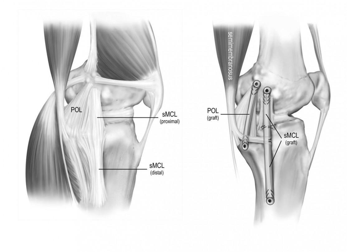 MCL Reconstruction Using Anatomical Technique