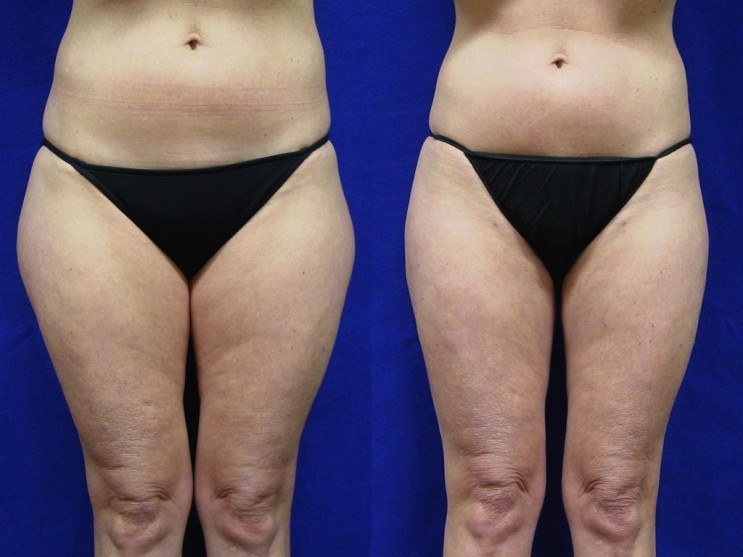 Tickle Lipo before-after