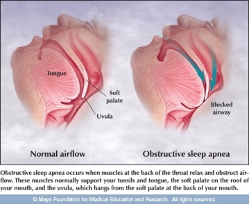 how-to-cure-sleep-apnea-naturally-at-home-without-