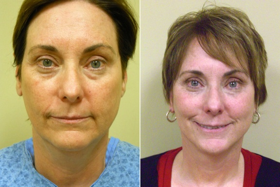Cynthia Jolin--Before & After