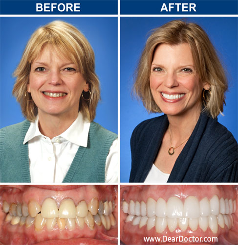 Win a smile makeover 2019