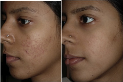 Dermaroller ® Before and After Acne Scars