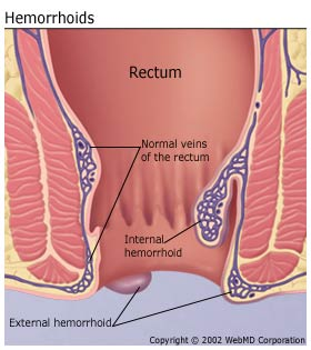 11807084-cure-hemorrhoids-during-pregnancy.jpg