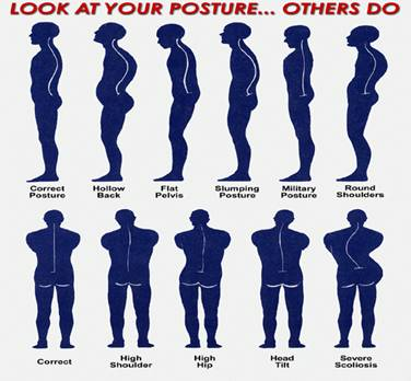side-and-back-posture