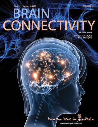 Brain Connectivity