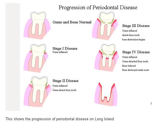 Progression of Long Island Gum disease