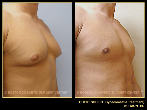 Chest Sculpt
