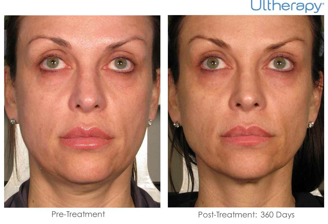 How does Ultherapy work?