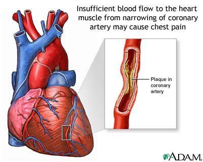 highbloodcholesterolsymptoms1