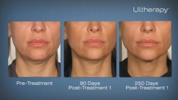 Ulthera in NJ for Face and Neck Lift