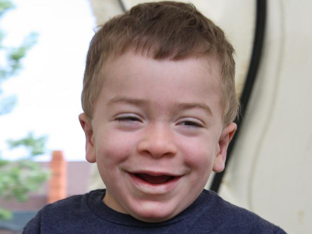 Jack Fowler, 5, suffers from the rare disease Hunter Syndrome