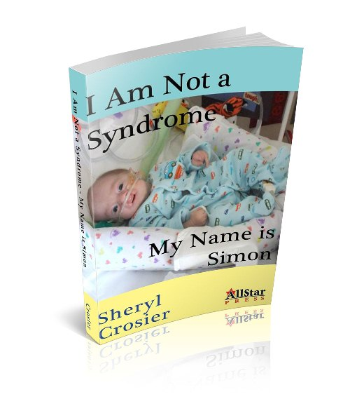 "Trisomy 18 baby. ""I Am Not a Syndrome - My Name is Simon"""