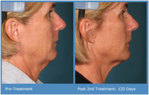 Ultherapy Neck and Facelift
