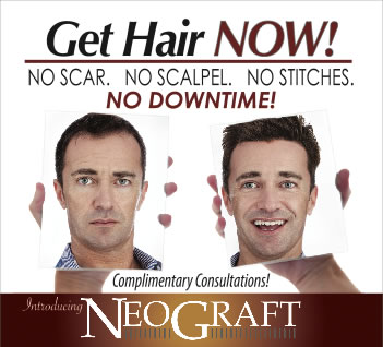 NeoGraft Hair Transplant - Young Medical Spa