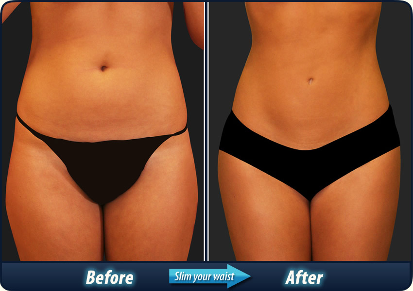 Look at the slimming results these people experienced!