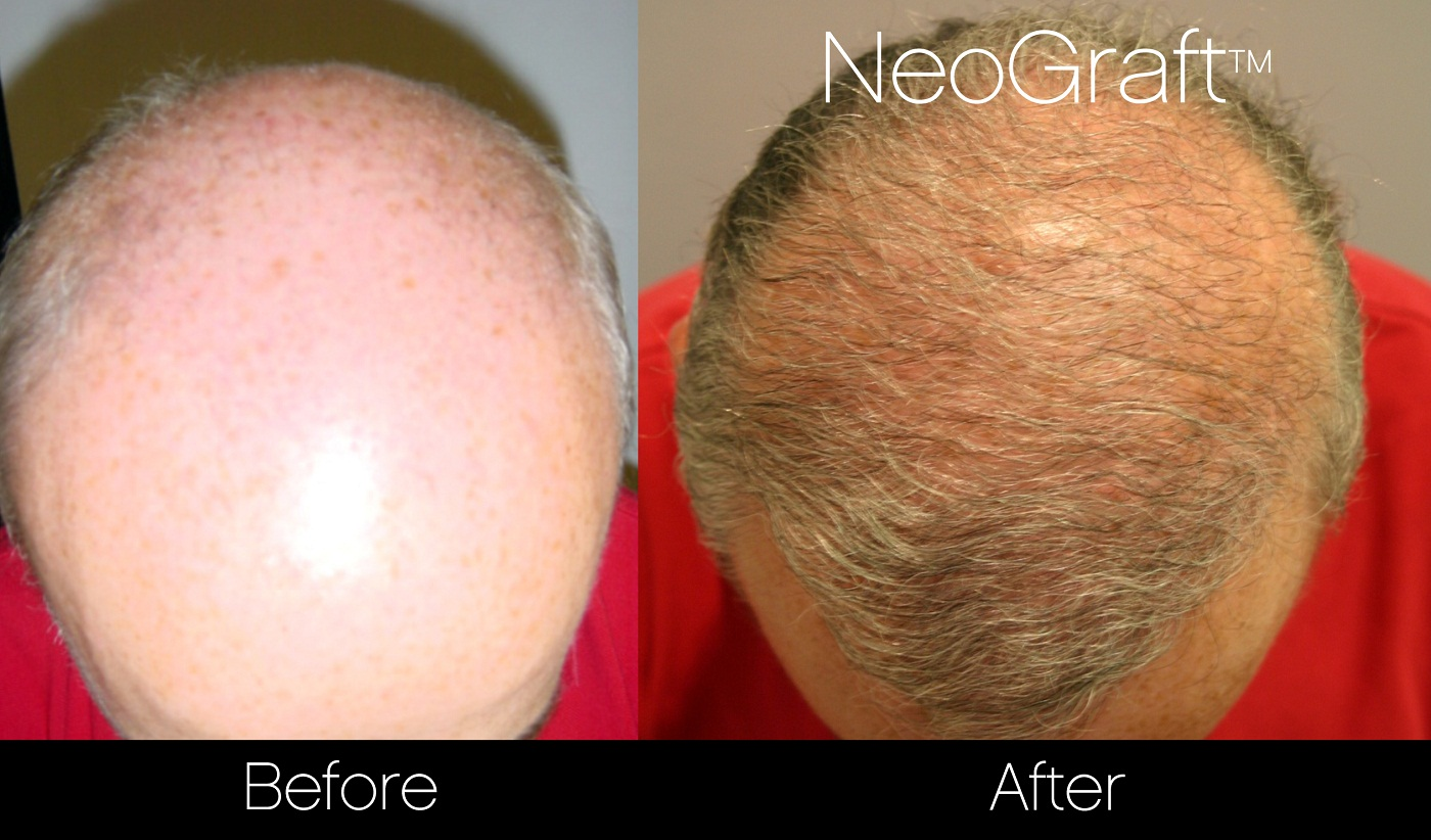 Neograft Before And After Photo of Male Hair Transplant Patient