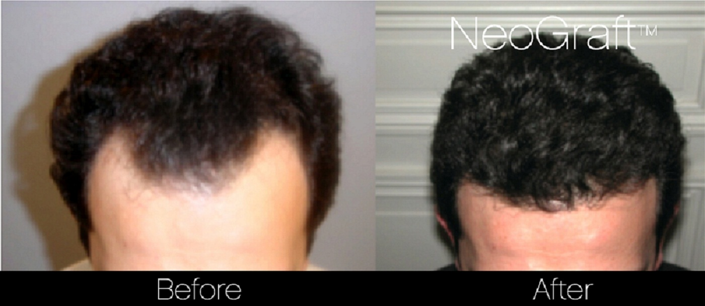 Neograft Before And After Photo of Male Patient