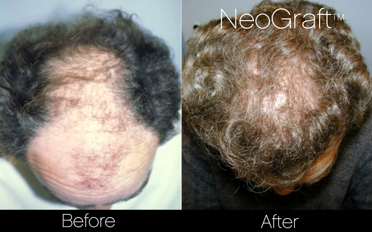 Neograft Before And After Photo of Toronto Male Patient