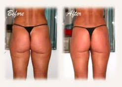 Perfect Body Laser and Aesthetics Offers Cavi-Lipo