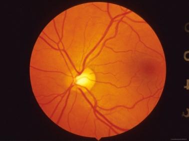 Retina and Optic Nerve