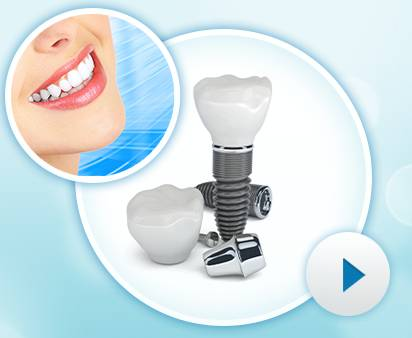 Dentalwise dental implants