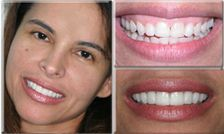 Actual Smile South Florida Cosmetic Dentistry Patient
