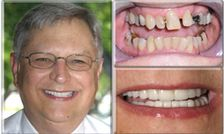 Cosmetic Dentistry Can Take Years Off Your Face