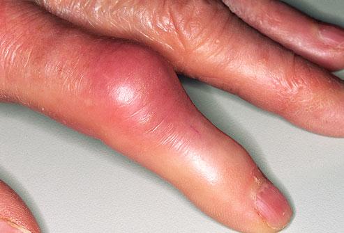 sore finger joints