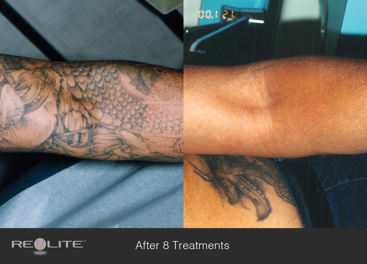best option for tattoo removal on long island is laser