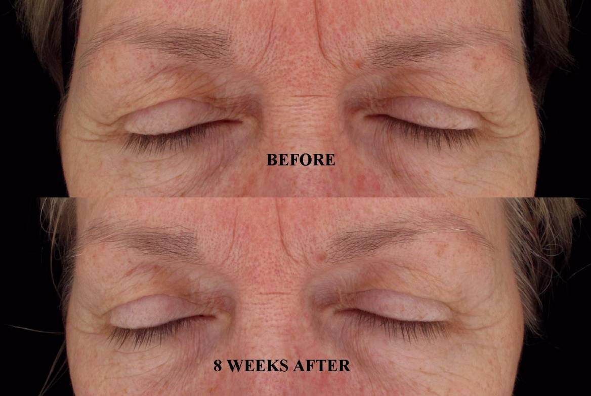 HydroPeptide's Uplifting Comfort Eye Gel Restores a Lifted, Less ...