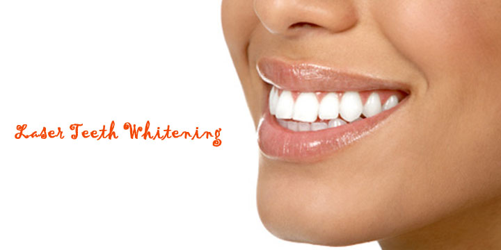 Best Laser Teeth Whitening Indianapolis Indiana  Thyrd. Affordable Search Engine Optimization. Criminal Lawyer Los Angeles Car Crash Images. Anthem Bcbs California Phone Number. Unsecured Business Loan Lenders. Settling Debt For Less Than Owed. Pancreatic Cancer Organization. Keller Elementary School Plumbers Chandler Az. How To Fix Leaky Toilet Grey Cloud Elementary
