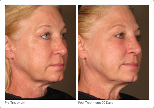 Skin Tightening Full Face & Neck