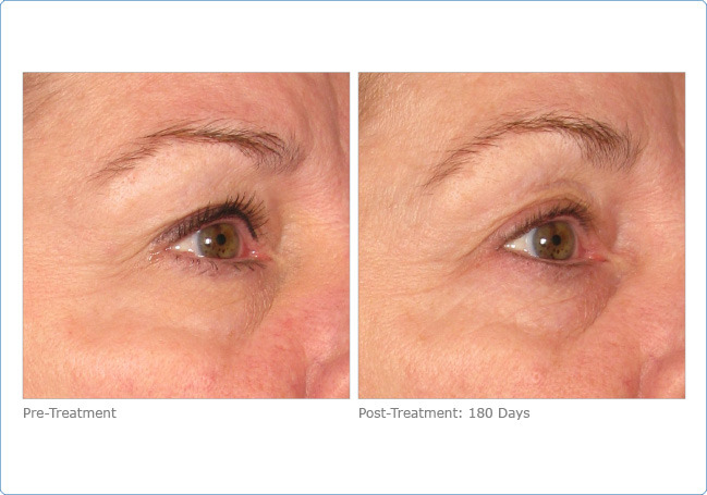 Skin Tightening Brow Lift
