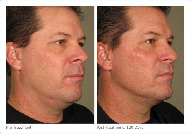 of facial skin the Tightening