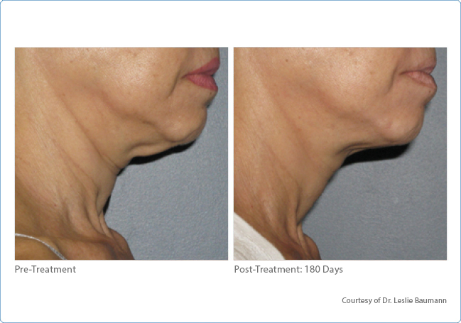 Skin Tightening Neck