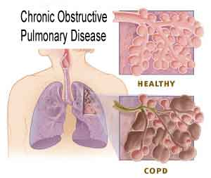 COPD - Chronic Obstructive Pulmonary Diseases