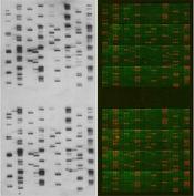 EpiGold™ Histone Peptide Array