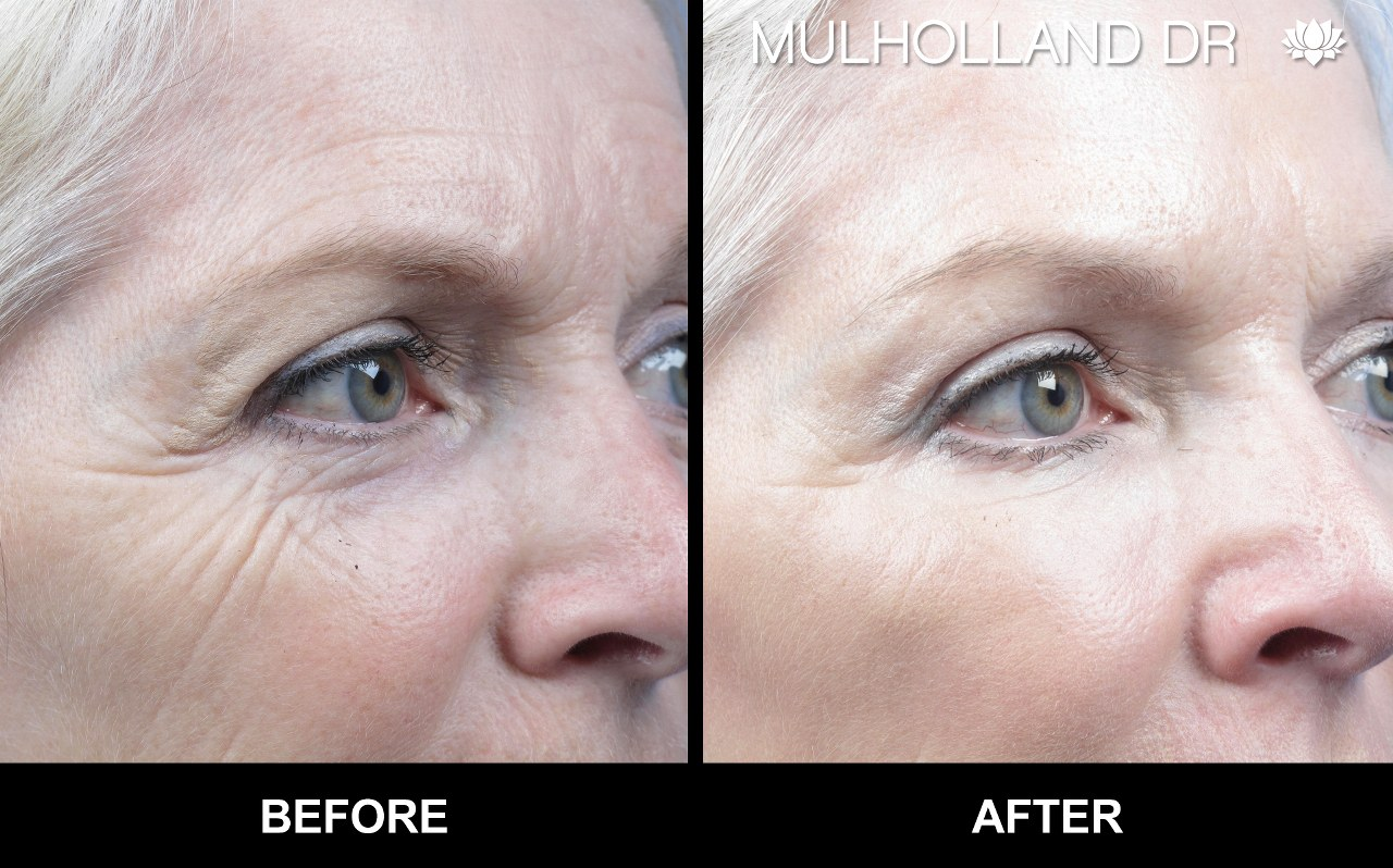 Botox Face Lifting Before and After Photo of Toron