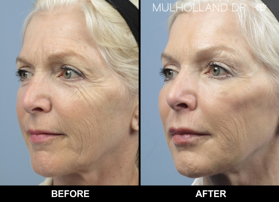 Botox Face-Lifting: 5 Years Younger in 30 Minutes! -- SpaMedica | PRLog