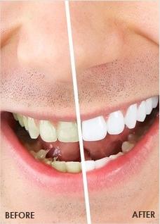 Edge offers deals on in office teeth bleaching or teeth whitening